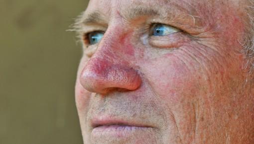 Entzündung Im Gesicht