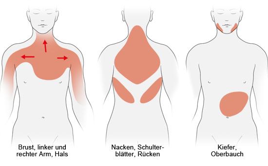 Grafik: Mögliche Schmerzregionen bei Herzinfarkt - wie im Text beschrieben