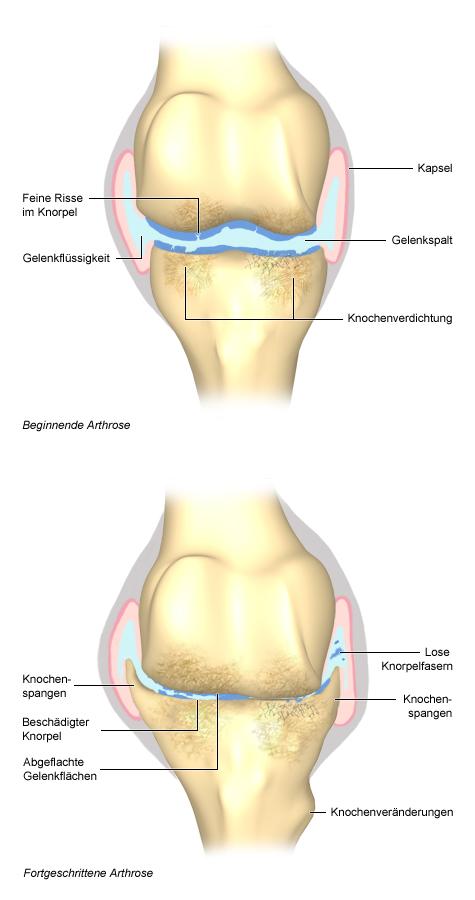 Grafik: beginnende und fortgeschrittene Arthrose im Gelenk