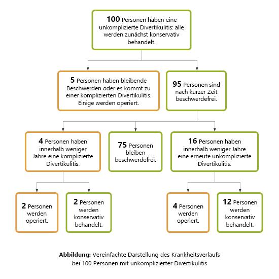 Grafik: Vereinfachte Darstellung des Krankheitsverlaufs von 100 Personen mit unkomplizierter Divertikulitis