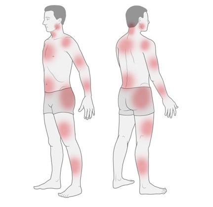 Grafik: Mögliche Schmerzbereiche bei Fibromyalgie - wie im Text beschrieben