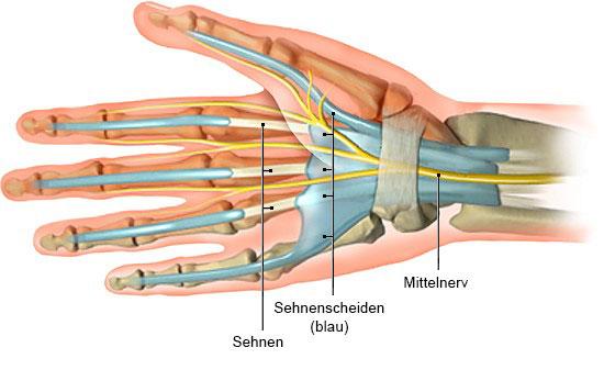 Grafik: Hand mit Sehnen und Sehnenscheiden (Handinnenseite)