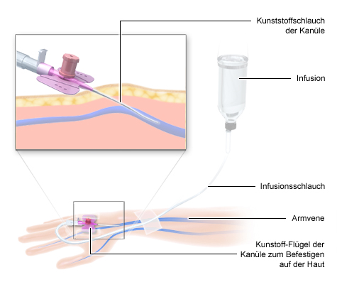 Grafik Chemotherapie: Infusion in eine Vene