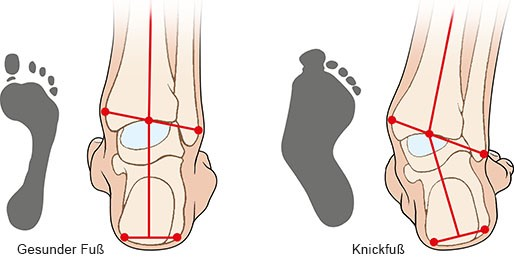 Grafik: Gesunder Fuß und Knickfuß - wie im Text beschrieben