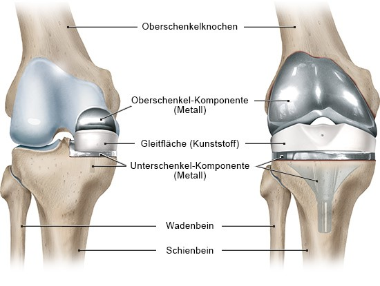 Grafik: Ansicht: rechtes Knie von vorn; links: Teilprothese, rechts: Vollprothese - wie im Text beschrieben