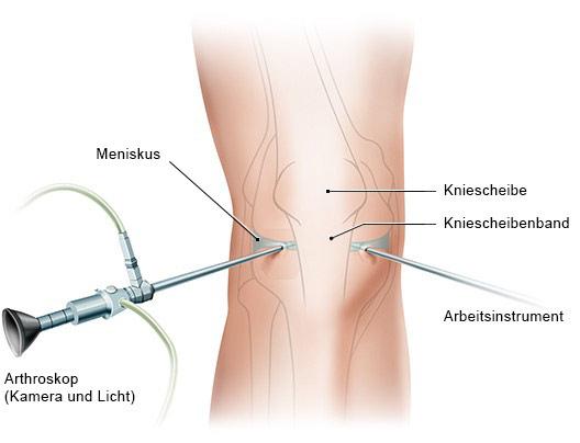 Grafik: Kniespiegelung (Arthroskopie)