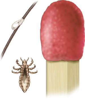 Grafik: Kleiner als ein Streichholzkopf: ausgewachsene Kopflaus und Nisse