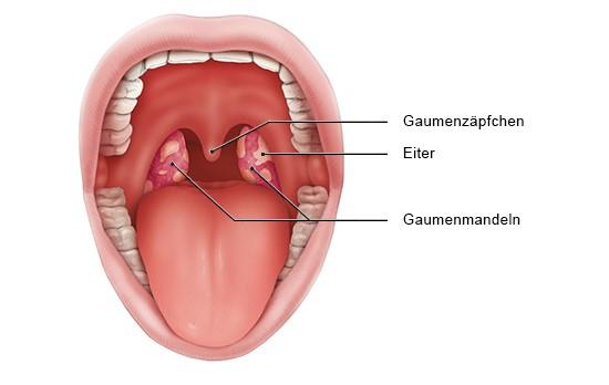 Grafik: Blick in den Mund: Geschwollene, entzündete Mandeln mit Belag