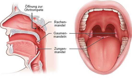 Grafik: links Querschnitt Kopf seitlich, rechts Blick in den Mund mit allen vier Mandeln