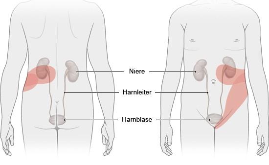 Nierensteine Symptome