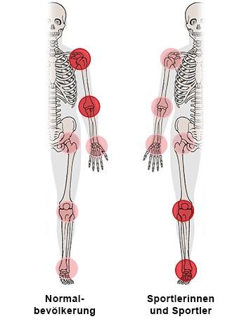 Grafik: Körperbereiche, an denen Sehnenreizungen häufig auftreten, im Vergleich