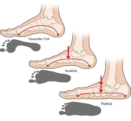 Grafik: Gesunder Fuß, Senk- und Plattfuß - wie im Text beschrieben