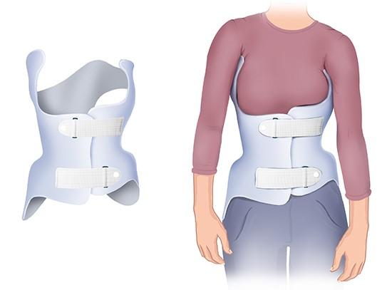Grafik: Orthopädisches Korsett zur Skoliosebehandlung