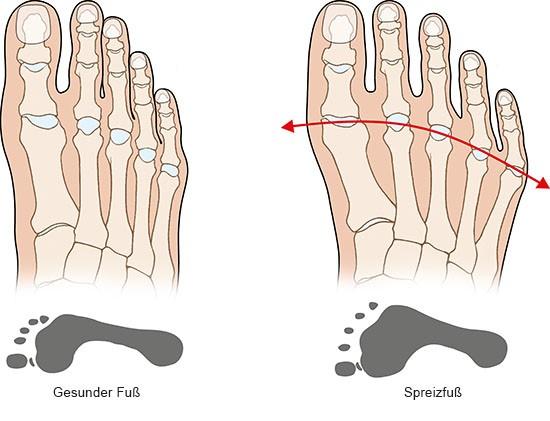 Grafik: Gesunder Fuß und Spreizfuß - wie im Text besprochen