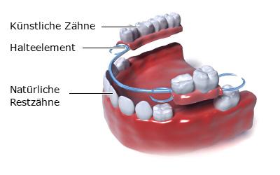 Grafik: Teilprothese für den Unterkiefer - wie im Text beschrieben