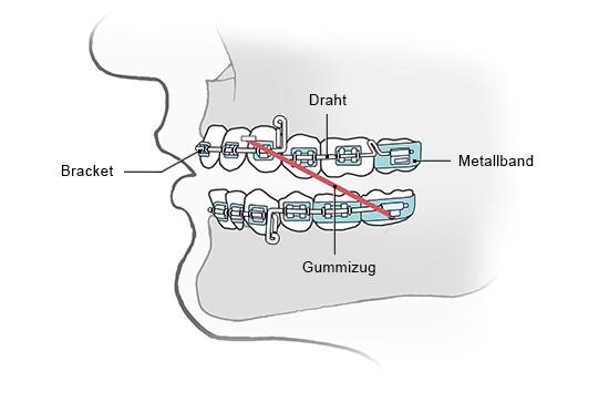 Grafik: Eine festsitzende Zahnspange mit aufgeklebten Brackets