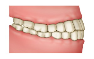 Grafik: Beim normalen Gebiss greifen die Zähne leicht versetzt ineinander