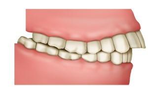 Sich schneidezähne verschieben Wenn Zähne