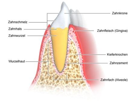 Zahnhalteapparat - wie im Text beschrieben