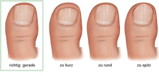 Wächst nach fingernagel nicht ᐅ Wächst